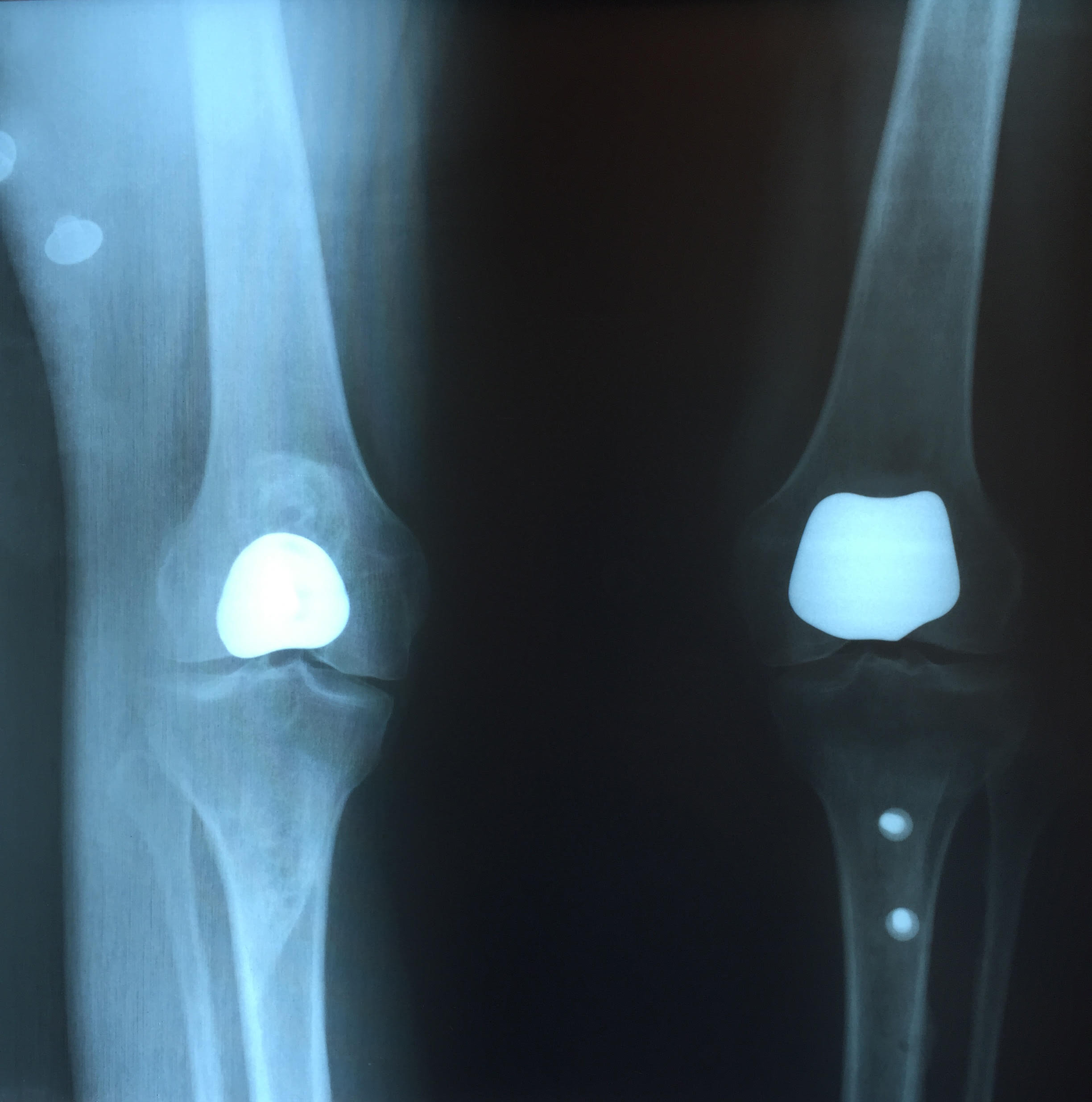 AP View of Bilateral Patellofemoral Knee Replacement with Realignment Procedures
